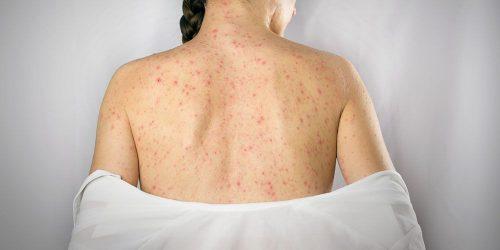 Infecciones-sifilis